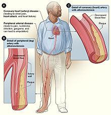 Effets du tabac sur la santé - Wikipédia 7