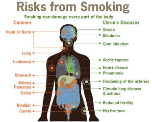 Effets du tabac sur la santé - Wikipédia 1