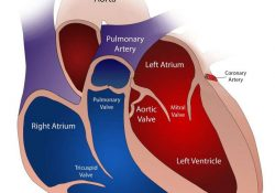 Maladie cardiovasculaire